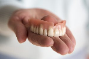 Implant supported dentures San Diego, CA